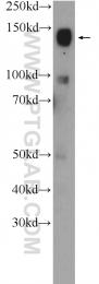 25250-1-AP - CHL1