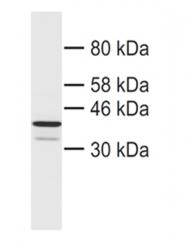 13683-1-AP - CHMP4B