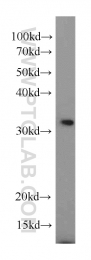 15798-1-AP - Nuclear protein Hcc-1