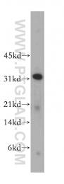 13394-1-AP - CLEC1A