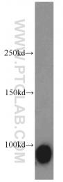 12629-1-AP - Calmegin