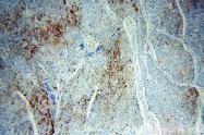 12289-1-AP - Apolipoprotein J / Apo J