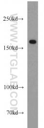 19802-1-AP - Collagen type XVI alpha 1 chain