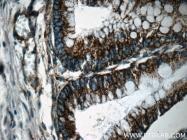 11448-1-AP - Complex IV subunit Va