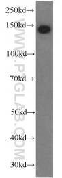 66156-1-Ig - Ceruloplasmin