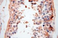 17125-1-AP - Casein kinase I isoform alpha-like