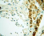 11230-1-AP - Casein kinase I epsilon