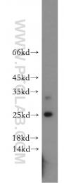20234-1-AP - Casein kinase II beta