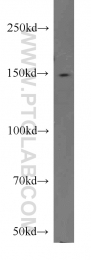 11931-1-AP - CSPP1