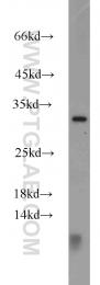 16534-1-AP - CTHRC1