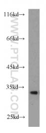 55021-1-AP - Cathepsin D