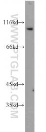 10108-2-AP - Fractalkine / CX3CL1
