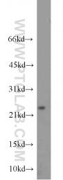 13317-1-AP - Cytoglobin