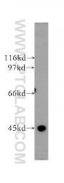13363-1-AP - CYP11A1