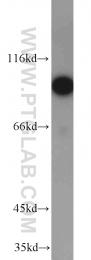 10109-2-AP - DAB2 / DOC2