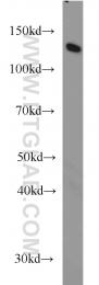 66010-1-Ig - DDB1 / XAP1