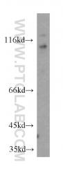 20566-1-AP - DDX58