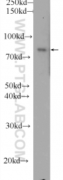11547-1-AP - DAG kinase alpha