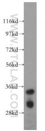 15563-1-AP - DIMT1L