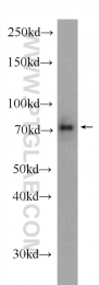 23411-1-AP - DNAJC21 / DNAJA5