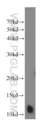 10388-1-AP - DNAL4