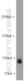 55001-1-AP - RNASEN