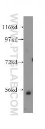 12171-1-AP - E2F1