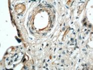 10862-1-AP - CD105 / Endoglin