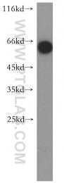13021-1-AP - CD39L3 / ENTPD3