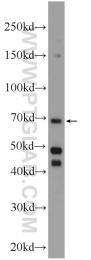 24558-1-AP - ENTPD7 / LALP1