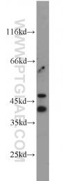 21050-1-AP - CD326 / EPCAM / TACSTD1