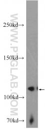 20883-1-AP - EPHB4