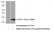 20178-1-AP - Epsin-3