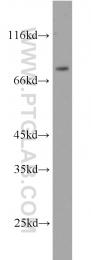10818-1-AP - ERCC2