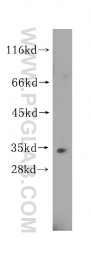 15244-1-AP - Esterase D (ESD)
