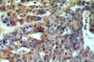 14007-1-AP - Estrogen receptor beta