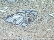 55441-1-AP - Estrogen receptor beta