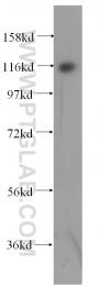16253-1-AP - Exonuclease 1 (EXO1)