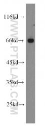 10215-1-AP - XRCC9 / FANCG