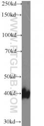 13098-1-AP - CD95 / FAS