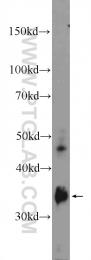 11867-1-AP - Ficolin-3