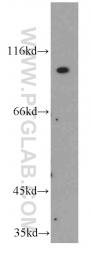 11098-1-AP - CD334 / FGFR4