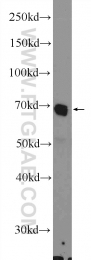 14118-1-AP - FAD synthetase