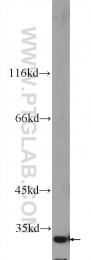 24285-1-AP - FOXB1 / FKH5