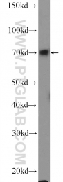 55365-1-AP - FOXC1 / FKHL7 / FREAC3