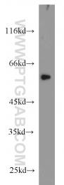 23066-1-AP - FOXC2 / FKHL14 / MFH1