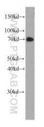 66118-1-Ig - Fucosyltransferase 8