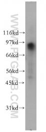 12552-1-AP - FXR2