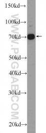 22549-1-AP - GAB2