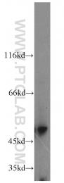 18503-1-AP - GAL3ST1